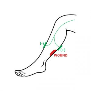 wound electrotherapy